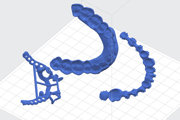 3D-druck-SLM-SLA-Modelle-Service-Dienstleister-3d-print-wiegand-dental