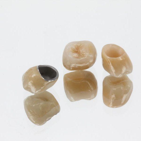 vollverblendete-Krone-Metallkeramik-Zirkonkrone-Vergleich-Zahnkrone-Unterschied