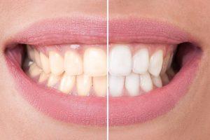 Bleachingschiene - Wiegand Dental - weiße Zähne - Bleachinggel
