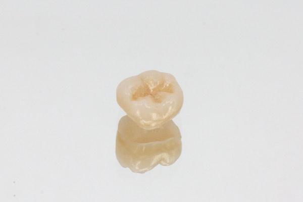 zahnkrone-Zirkonkrone-Bruxkrone-Seitenzahn-unverblendet-Zahnkrone