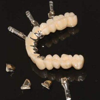 Eingliederungshilfe-implantat-vor-ort-zahntechniker-wiegand-dental