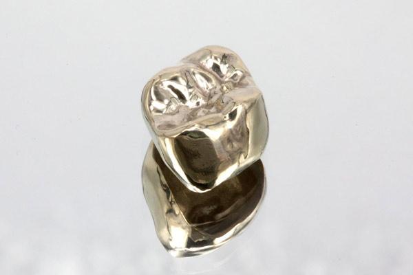 zahnkrone-Metallkrone-Vollgußkrone-Zahnkrone-Seitenzahnkrone-Zahnkrone