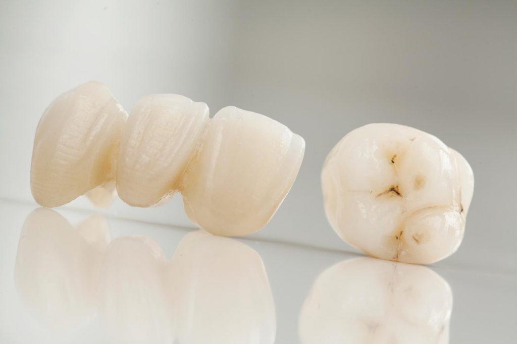 Vollverblendete Zirkonkrone Zirkonbrücke. Wir machen natürliche weiße Zähne.