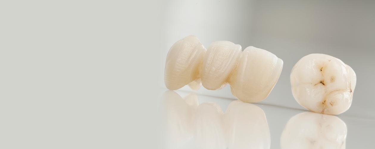 zahnersatz-zirkon-vollkeramik-Zahnkrone-Implantat-Kosten-Unterschied-Camlog-Zirkon-Titan-Wiegand-Dental-Dentallabor-Ingolstadt-München-Nürnberg-Eichstätt-dentallab-3d-3dprint-cad-cam-cadcam