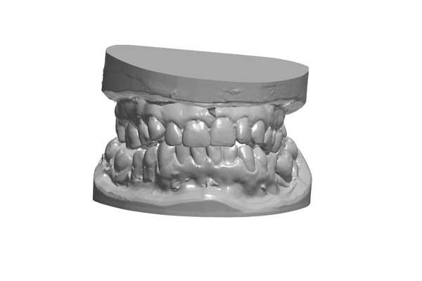 zahnersatz-zahnkrone-zahnbrücke-zahnimplantat-veneers-schöne-Zähne-neue-Zähne-zirkon-vollkeramik-Zahnkrone-Implantat-Kosten-Unterschied-Camlog-Zirkon-bleaching-zahnarzt-Titan-Wiegand-Dental-Dentallabor-Ingolstadt-DentallaborIngolstadt-München-Nürnberg-Eichstätt-dentallab-3d-3dprint-cad-cam-cadcam-schnarcherschiene-knirscherschiene-vorteil-nachteil