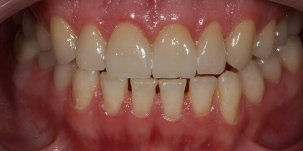 Zahnkronen-vorher-nachher-Zirkon-Vollkeramik-Wiegand-Dental-Dentallabor-Ingolstadt-München-Nürnberg-Eichstätt