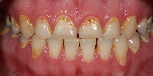 Vorher-Nachher-Zahnersatz-Ausgangssituation-Zahnkrone-Vollkeramik-Zirkonkrone-schöne Zähne-weiße Zähne