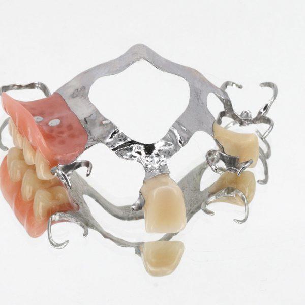 Teilprothese zahnersatz OK-Klammermodellgussprothese WIEGAND DENTAL®