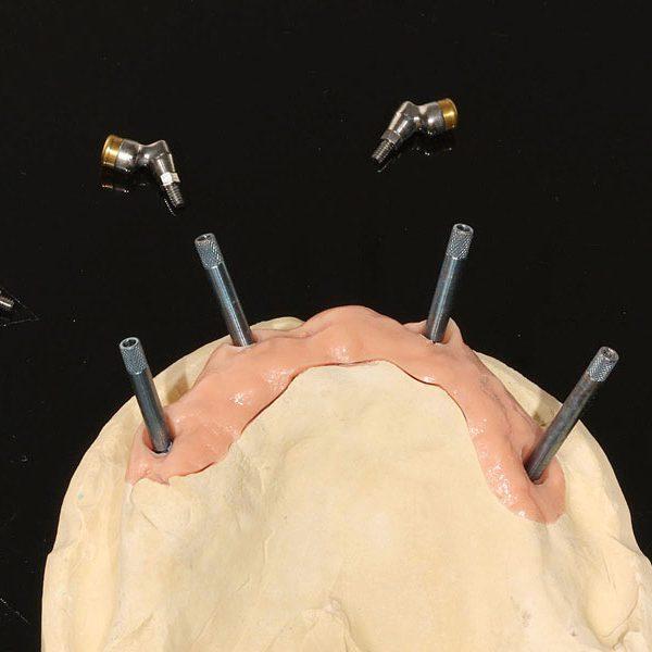 stark-divergente-Implantate-Ausgleich-Einschubachse-Locator