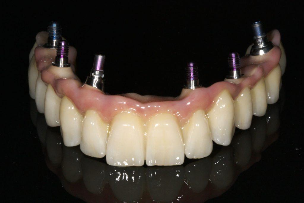 implantbrücke Zirkon titan festsitzend camlog straumannschöne feste Zähne