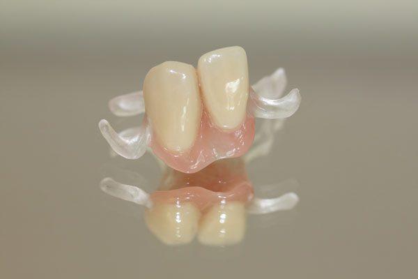 Provisorische-Prothese-glasklar-klammer-Valplast-Alternative