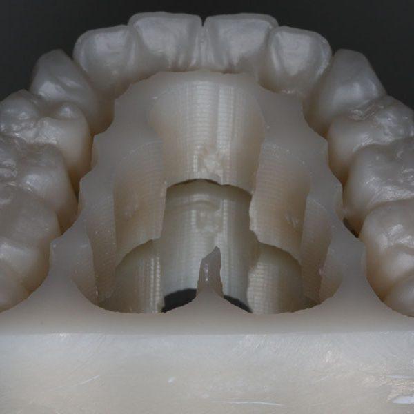 zahnersatz-zahnkrone-zahnbrücke-zahnimplantat-veneers-schöne-Zähne-neue-Zähne-zirkon-vollkeramik-Zahnkrone-Implantat-Kosten-Unterschied-Camlog-Zirkon-bleaching-zahnarzt-Titan-Wiegand-Dental-Dentallabor-Ingolstadt-DentallaborIngolstadt-München-Nürnberg-Eichstätt-dentallab-3d-3dprint-cad-cam-cadcam-schnarcherschiene-knirscherschiene-vorteil-nachteil 3d-3dprint-3d-print-sla-service-3dservice-Dienstleister-Intraoralscan-3d-druck-Dentallabor-ingolstadt-sla-modell-schiene-implantat-bohrschablone