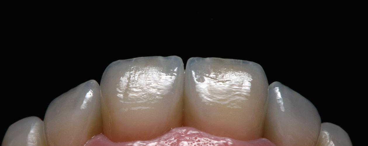 schöne-Zähne-weiße-Zähne-Veneers-Frontzähne-Dentallabor-Wiegand-Dental
