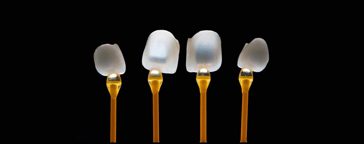 zahnersatz-veneers-e.max-zirkon-vollkeramik-Zahnkrone-Implantat-Kosten-Unterschied-Camlog-Zirkon-Titan-Wiegand-Dental-Dentallabor-Ingolstadt-München-Nürnberg-Eichstätt-dentallab-3d-3dprint-cad-cam-cadcam