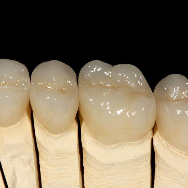 Disilikat-vollverblendet-Vollkeramikkrone-Download-zahnersatz-zahnkrone-zahnbrücke-zahnimplantat-veneers-schöne-Zähne-neue-Zähne-zirkon-vollkeramik-Zahnkrone-Implantat-Kosten-Unterschied-Camlog-Zirkon-bleaching-zahnarzt-Titan-Wiegand-Dental-Dentallabor-Ingolstadt-DentallaborIngolstadt-München-Nürnberg-Eichstätt-dentallab-3d-3dprint-cad-cam-cadcam-schnarcherschiene-knirscherschiene-vorteil-nachteil