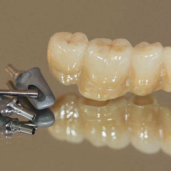 Implantatbrücke auf individuellen CAD CAM Titan-Abutments. Camlog Zahnimplantat. Zahnersatz festsitzend und vollverblendet als Zirkonbrücke.