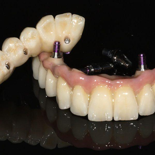 Fertiger festsitzender Zahnersatz auf Implantaten. Implantatbrücke keramisch verblendet auf Camlog Implantaten okklusal verschraubt.