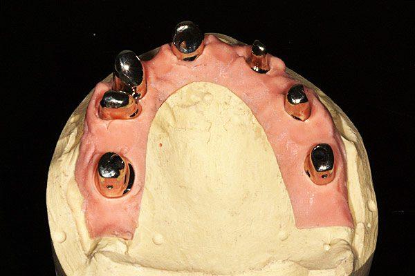 Zahntechnik-Gipsmodell-Zahnfleischmaske-implantat-teleskop-teleskopkrone-Dentallabor-ingolstadt-Wiegand-dental