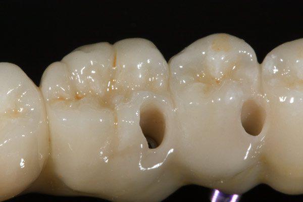 Implantat-zahnersatz-Camlog-okklusal-verschraubt-Keramik-Zahnbrücke-Zirkon-Wiegand-Dental-Dentallabor-Ingolstadt-München-Nürnberg-Eichstätt