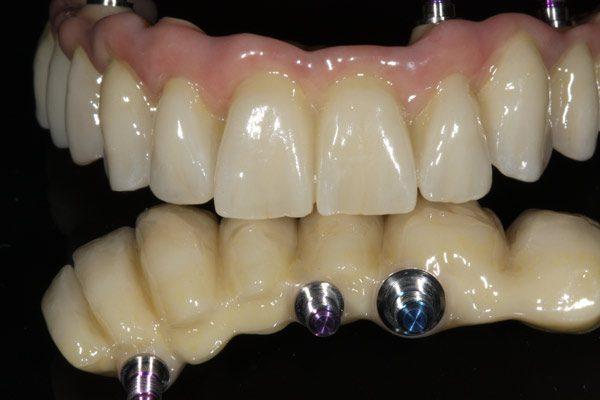 Implantat-zahnersatz-fest-Camlog-okklusal-verschraubt-Keramik-Zahnbrücke-Zirkon-Wiegand-Dental-Dentallabor-Ingolstadt-München-Nürnberg-Eichstätt