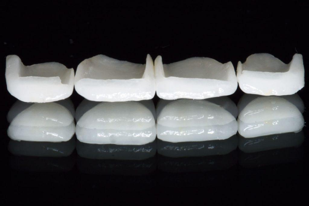Zahnersatz-veneers-schöne-Zähne-Vollkeramik-e.max