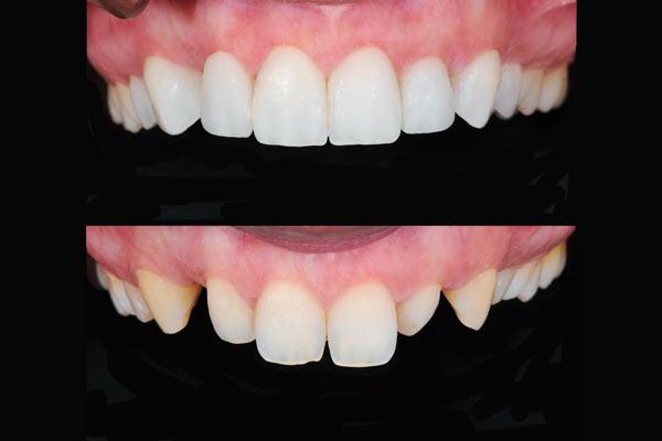 zahnersatz-Veneers-vorher-nachher-Zahnersatz-schöne-weiße-Zähne-Dentallabor-München-Eichstätt-Nürnberg